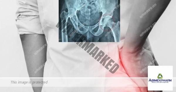 2 thói quen khiến đàn ông đối mặt nguy cơ hỏng khớp háng