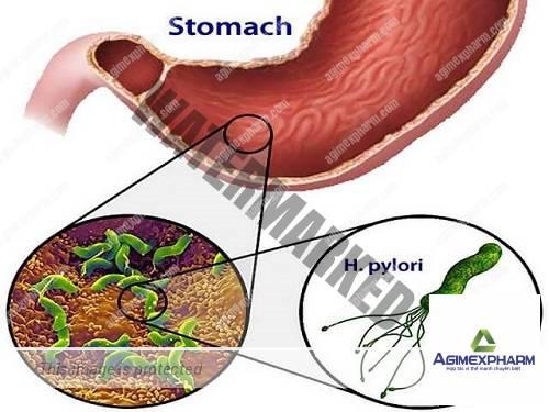 Cập nhật Chẩn đoán và điều trị Helicobacter pylori