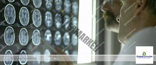 'Silent' strokes common after surgery, linked to cognitive decline