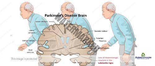 New strategy to treat Parkinson's disease