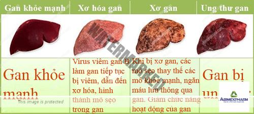Nguyên nhân nào gây ra căn bệnh ung thư có tỷ lệ mắc mới nhiều nhất hiện nay tại Việt Nam